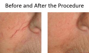 Laser Veins Removal