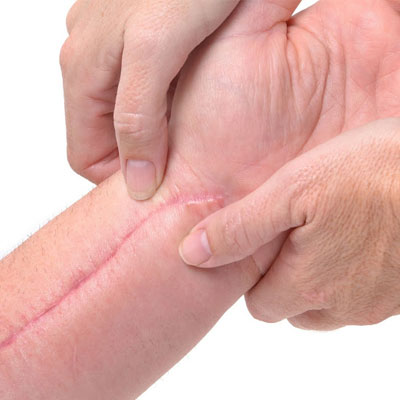 Post Surgical Scars