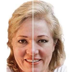 What are the symptoms of Fine Lines and Wrinkles?