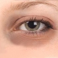 Dark Circles Around the Eyes