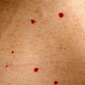 Strawberry Nevus and Other Birthmarks in Pictures | Med ...