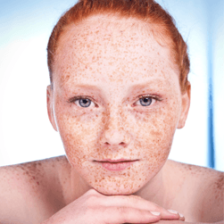 Freckles and Blemishes