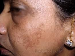 Petua Menghilangkan Eczema