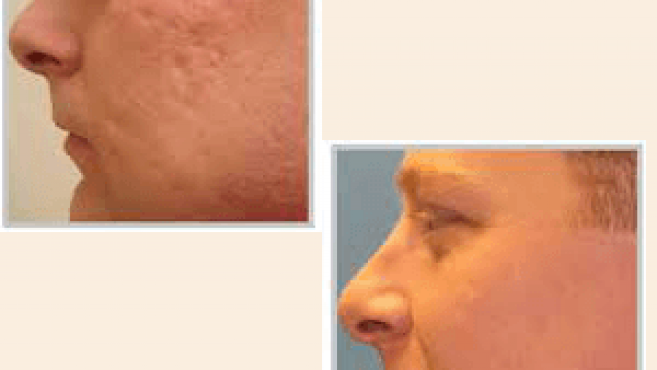 2 Simple But Most Effective Diy Remedies For Acne Scar Removal