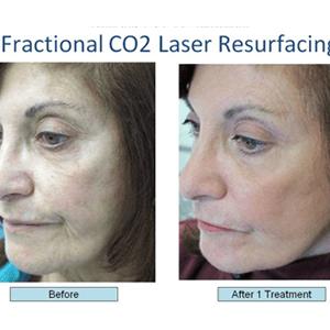 fractional CO2 treatment