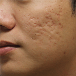 Acne_scar_Treatments