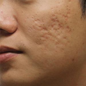 Acne_scar_Treatments