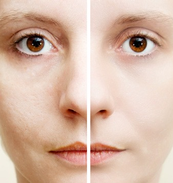 New Laser Treatment Helps To Remove Life Long Acne Scars