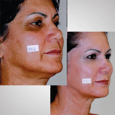 Skin_Rejuvenation