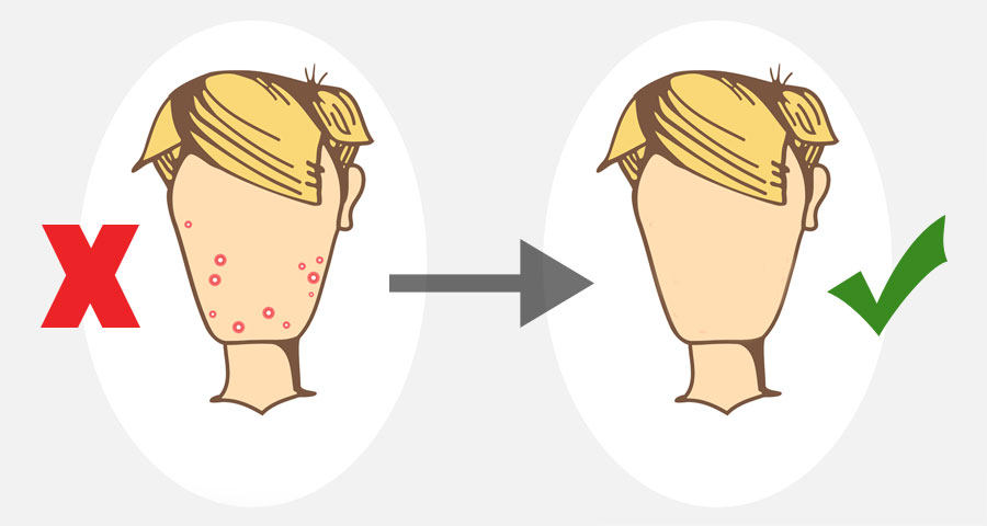 acne-cartoon-before-and-after