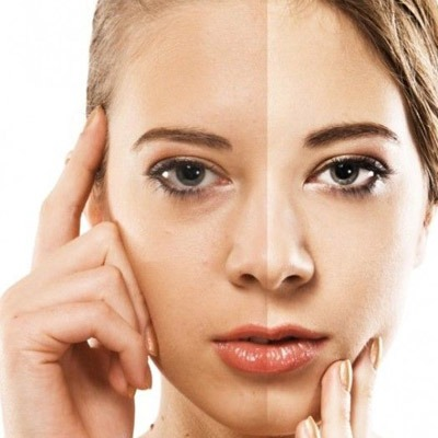 treatment for discoloration of skin Skin Care and Treatments