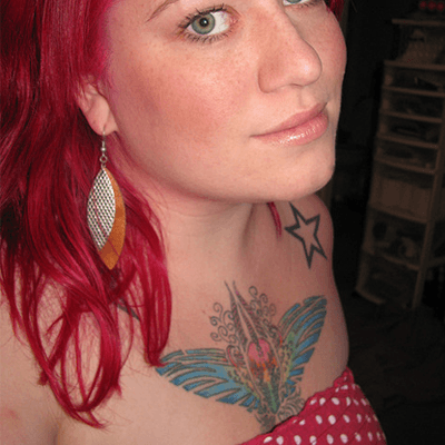 Freckles-and-Blemishes
