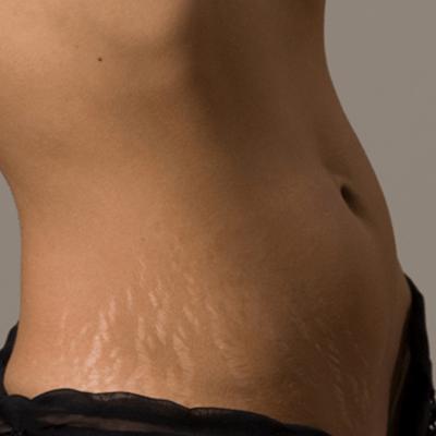 Растяжки бедрах после родов