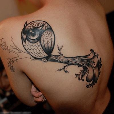 tattoo removal dubai