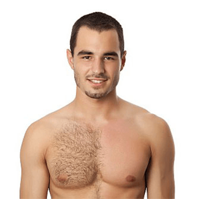 Best way to remove chest hair men