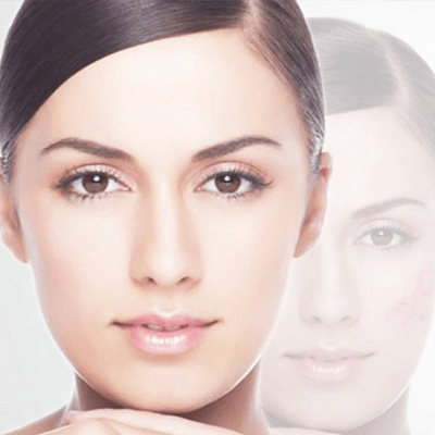 Glutathione injection of Skin Whitening