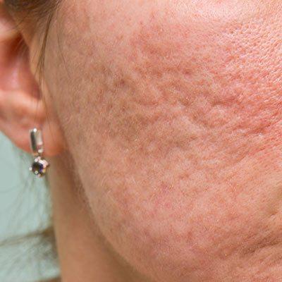 masque de beauté anti-acné pdf