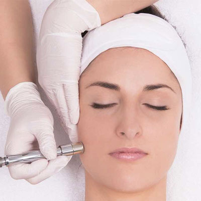 microdermabraison_Treatment