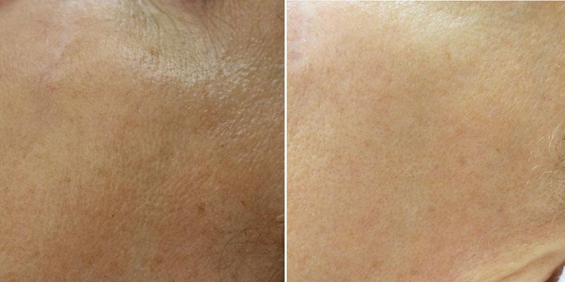 Skin_Rejuvenation