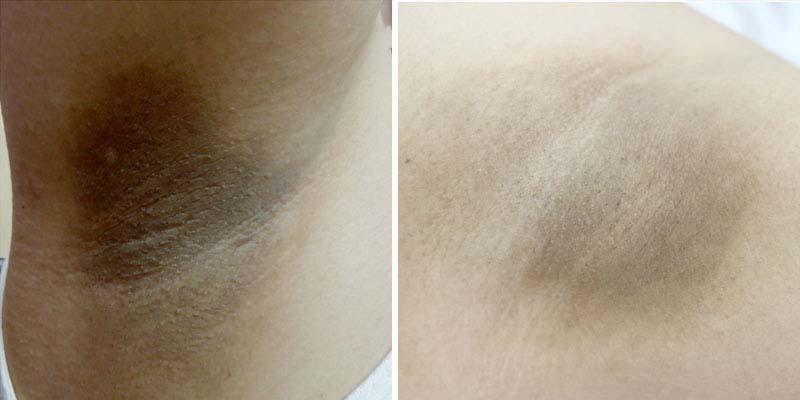 Under-Arm-Whitening