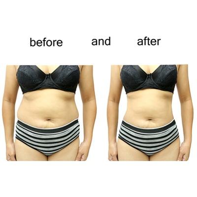 liposuction-in-dubai