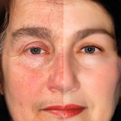 rosacea-treatment