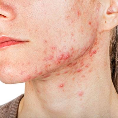 pimples treatment dubai
