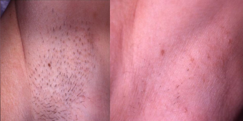 Hair removal - Body