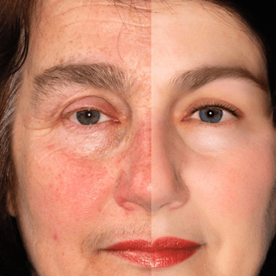 Rosacea Treatments Stop Seeing Red