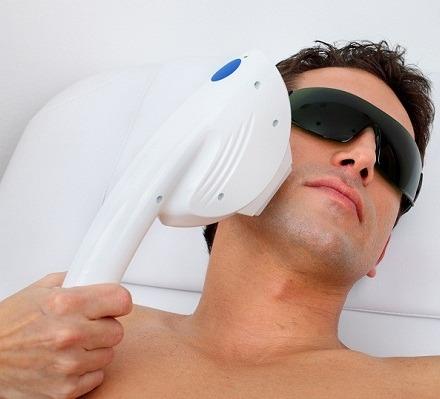 laser-hair-removal-men