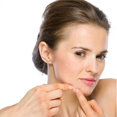acne and blackheads removal