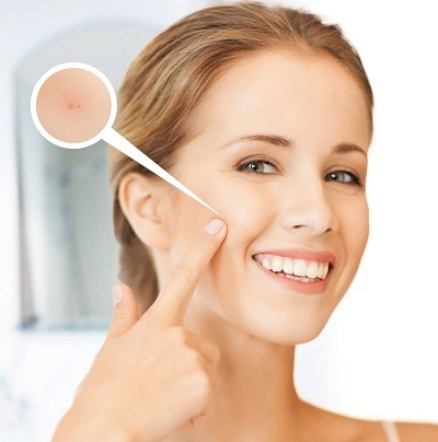 pimples removal treatment