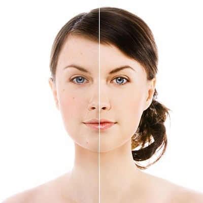 ingrown pimples treatment