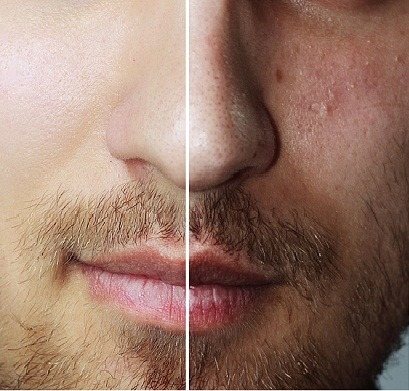 acne and scar treat
