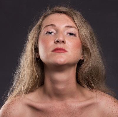 freckles blemishes removal