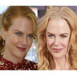 nicole kidman botox before n after