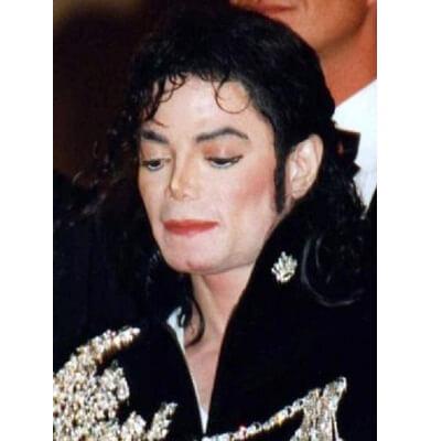 michael jackson skin whitening
