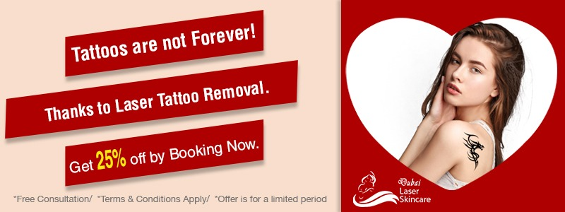 tattoo removal 25 % off