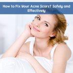 acne scar treatment in Abu Dhabi