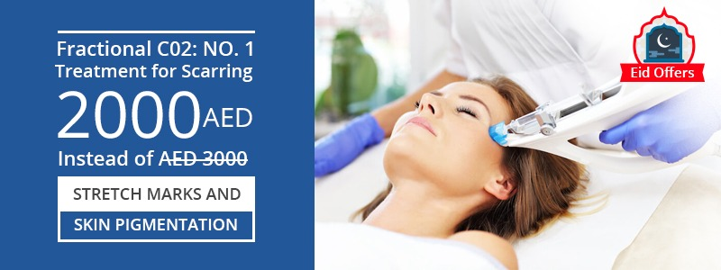 Fractional co2 number 1 treatment for Scaring