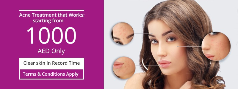 Acne Treatment Thats Work Quickly only 1000 AED