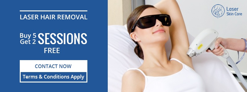 Laser Hair Removal Buy 5 Sessions Get 2 Free
