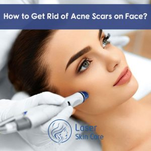 how to get rid of scars on face overnight