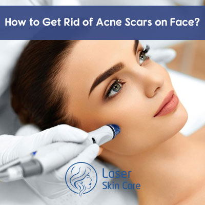 How to Get Rid of Acne Scars on Face
