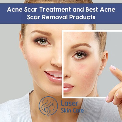Best Acne Scar Removal Products