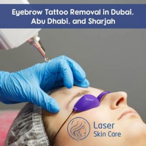 Eyebrow Tattoo Removal in Dubai, Abu Dhabi and Sharjah