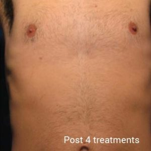 Laser-Hair-Removal-After-3-300x300