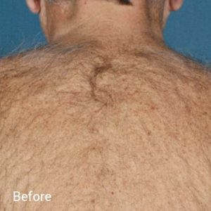 Laser-Hair-Removal-Before-1-300x300