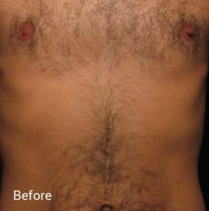Laser-Hair-Removal-Before-3-297x300