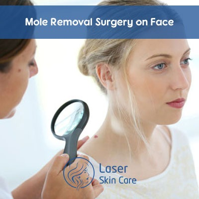 Mole Removal Surgery on Face